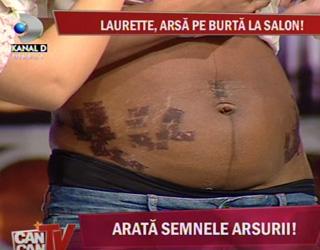 Laurette, te ajut să-ți revii! Am tratamentul perfect pentru rănile și problemele de după sarcină!