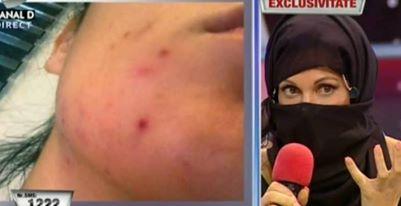 Alarmă pentru Nicoleta Luciu!! Soluție de extremă urgență pentru a salva tenul de acnee!!!